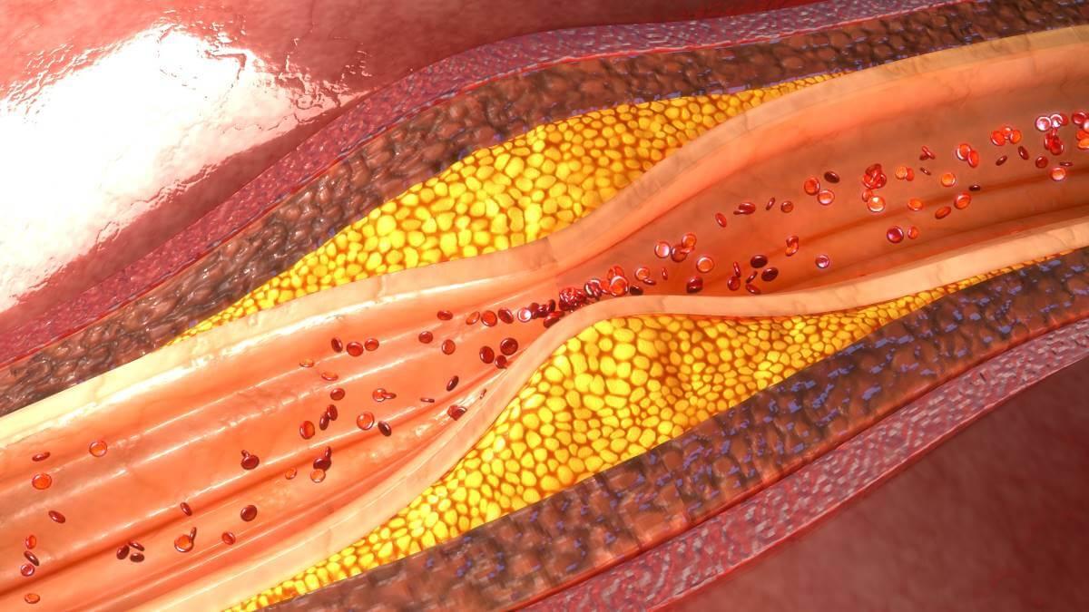 Dislipemia diabética