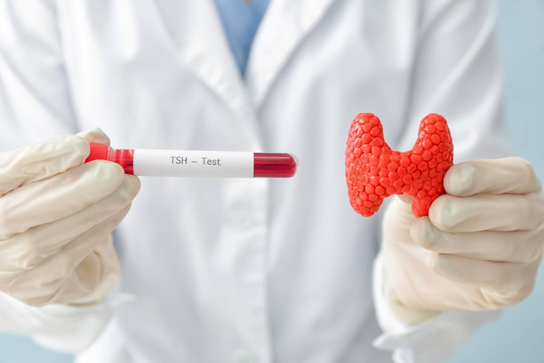 medico con muestra de sangre